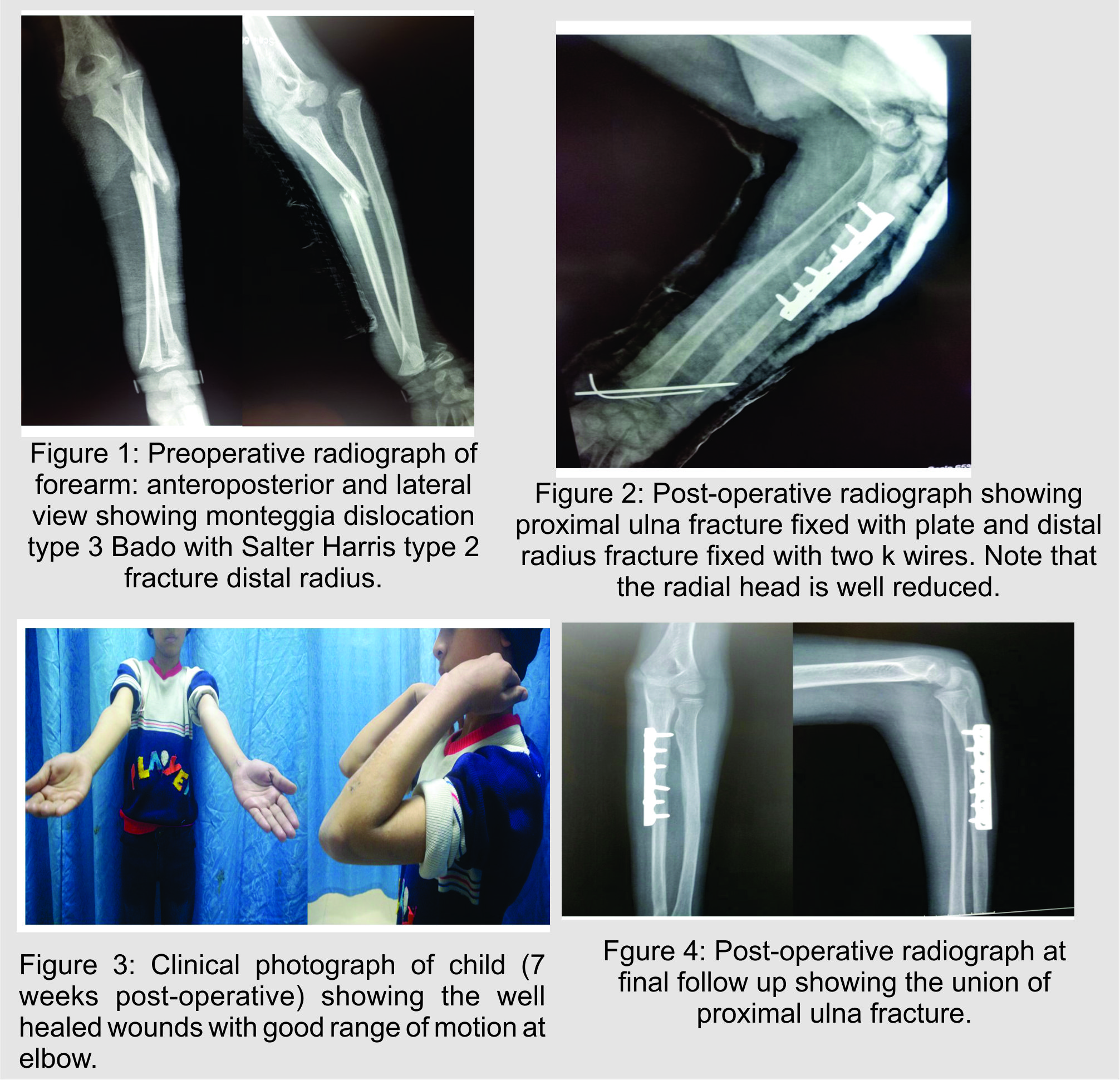 Monteggia Fracture Dislocation with Ipsilateral Distal Radius – Ulna Fracture in a Child ...